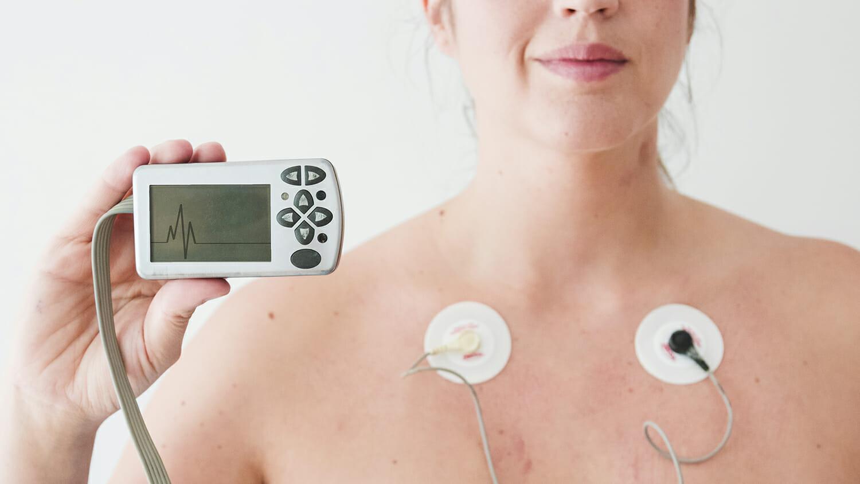 equipos médicos especializados - electrocardiógrafo