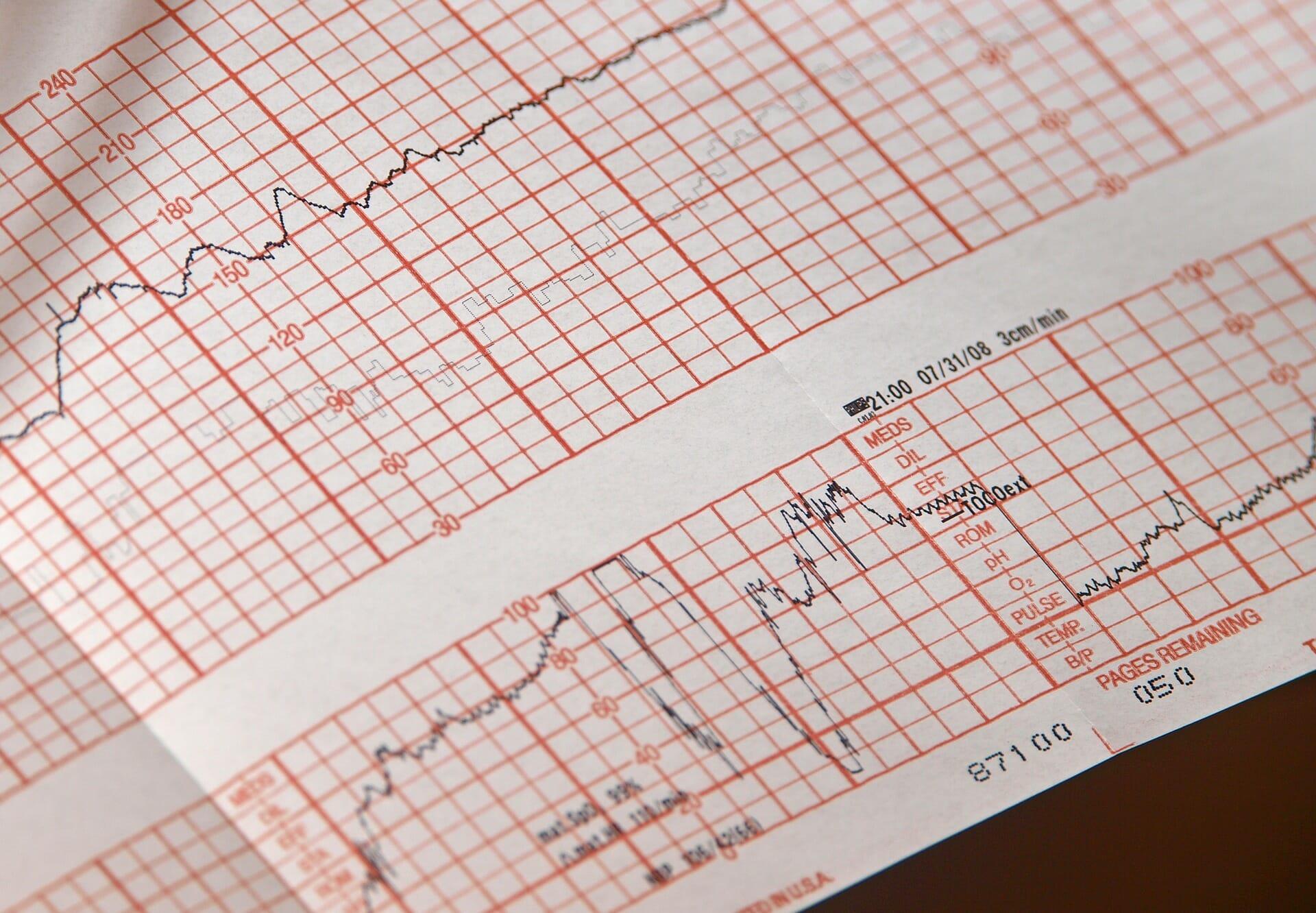 Electrocardiógrafos de 12 canales - Sonomedical